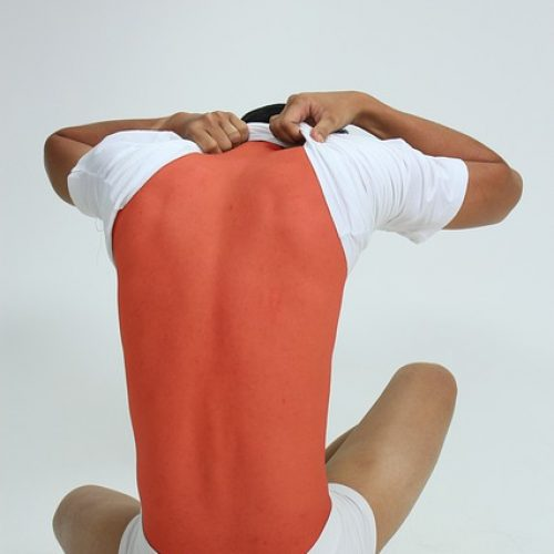 Idiopathic Low Back Pain: Extension Exercises, Manipulation & Prevention