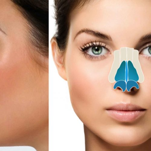 Rhinoplasty Surgery: It's More Than Just a Nose Job